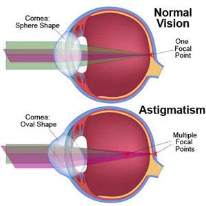 eye-astigmatism